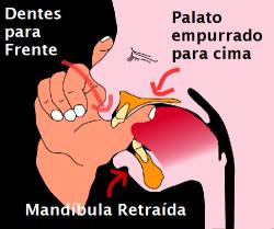 chupeta - dedo1