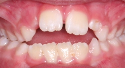 chupeta - dente2