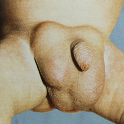 hernia-bilateral