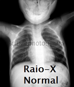 Normal heart and lungs of a child, X-ray