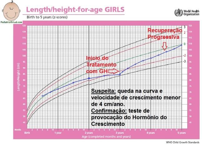 1 - Altura 0-5a - deficiencia de hormonio do crescimento GH