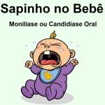 Sapinho - Monilíase ou Candidíase Oral